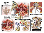 lumbar-fusion-surgical-procedure