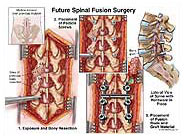 spinal fusion surgery - lumbar