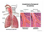 anaphylaxis-compared-asthma