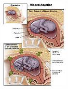 Fehldiagnose Missed Abortion