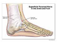 Superficial Peroneal Nerve in Ankle/Foot