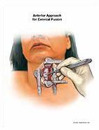 anterior-approach-for-cervical-fusion