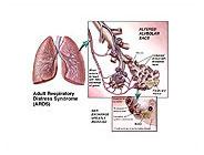 acute adult resporitary