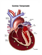 cardiac tamponade medical illustrations and trial exhibits, Skeleton
