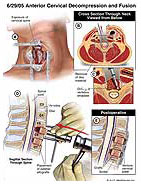 anterior-cervical-decompression-and-fusion
