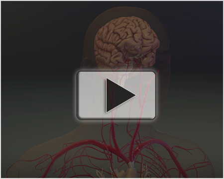 3D Transient Ischemic Attack and Stroke - MVI1308