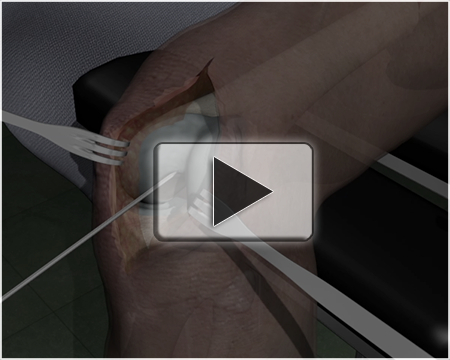Intramedullary Rodding of Left Femur Animation