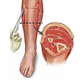 fasciotomy-medical-exhibits