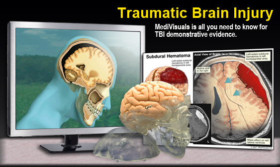 Traumatic Brain Injury Exhibits