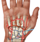 wrist-arthritis-medical-exhibits