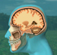 brain-injury-medical-exhibit-animations