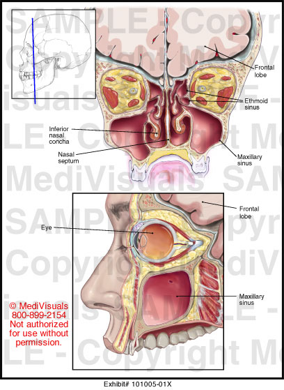 Normal Anatomy Of The Paranasal Sinuses Medical Exhibit