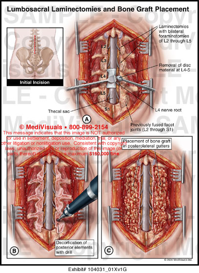 Lumbosacral Laminectomies And Bone Graft Placement