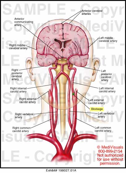 Internal Carotid Artery Blockage Medical Illustration ...