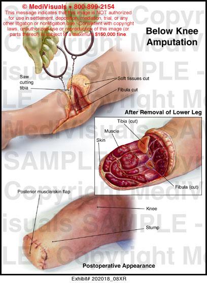 Below Knee Amputation Medical Illustration Medivisuals