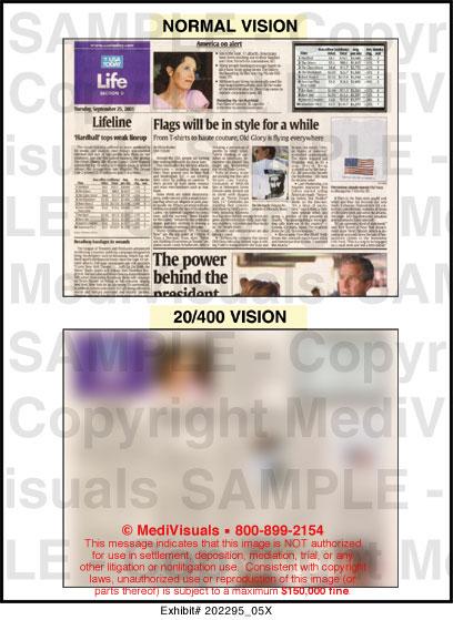 20/400 Vision Medical Illustration Medivisuals