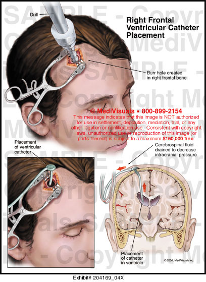 Medivisuals Right Frontal Ventricular Catheter Placement Medical