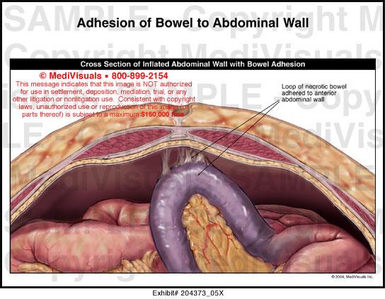Adhesion Of Bowel To Abdominal Wall Medical Illustration