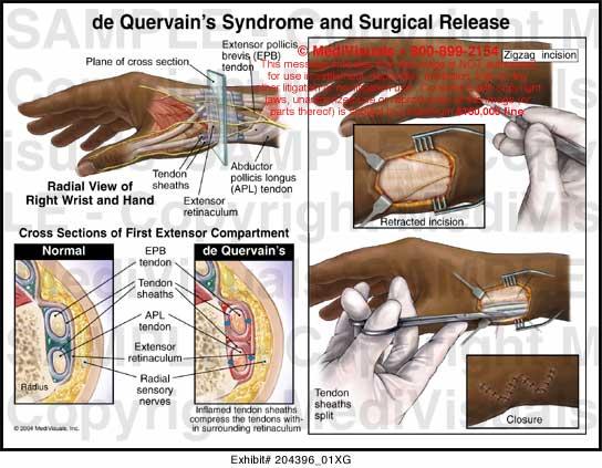 Suspensory ligament release for penile lengthening
