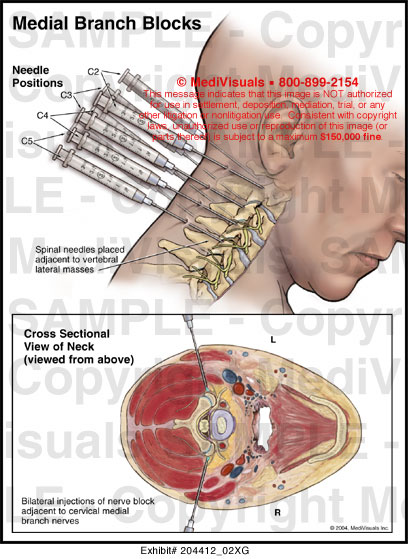 lumbar disc herniation regression after successful epidural steroid injection