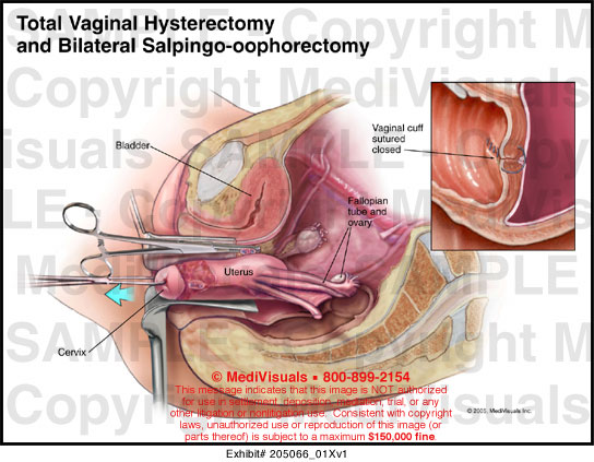 Total Vaginal Hysterectomy And Bilateral Salpingo Oophorectomy