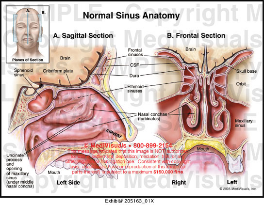 Medivisuals Normal Sinus Anatomy Medical Illustration