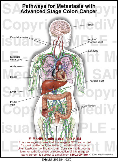 Medivisuals Pathways For Metastasis With Advanced Stage Colon Cancer Medical Illustration