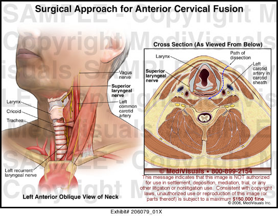 Medivisuals Surgical Approach For Anterior Cervical Fusion