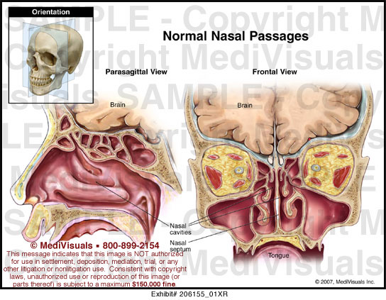 my nasal passages are swollen - 544×423