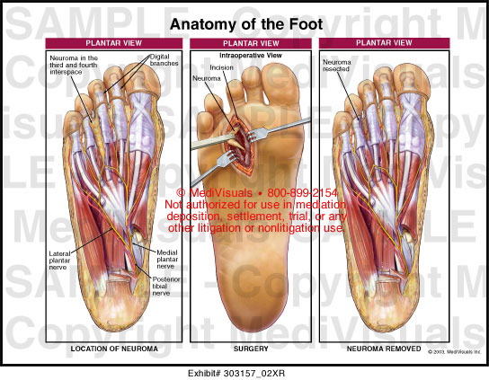 Anatomy of the bottom of your foot