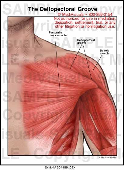 Medivisuals The Deltopectoral Groove Medical Illustration