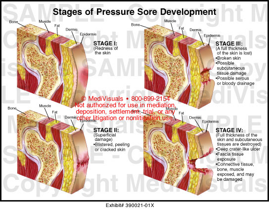 pressure sore care The base of the ulcer needs to be visible in order to properly stage the ulcer (though the ulcer will be at least a stage 3, as slough and eschar do not form on stage 1 pressure injuries or 2 pressure ulcers.