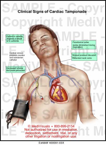 Clinical Signs Of Cardiac Tamponade Medical Illustration