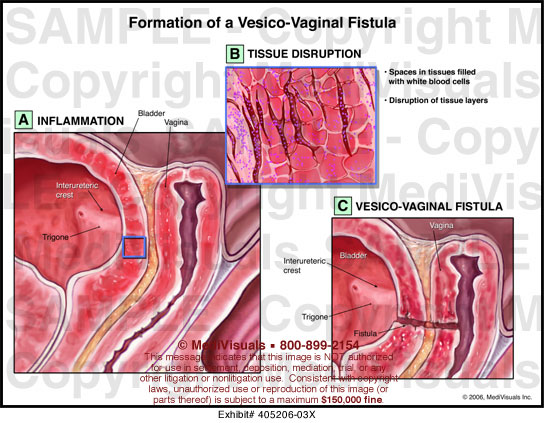 Vesco vaginal fistula