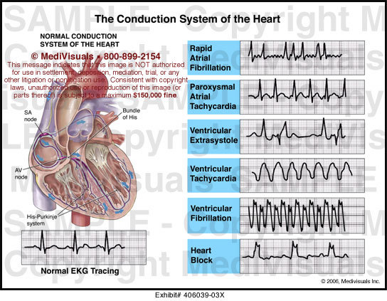 Medivisuals The Conduction System of the Heart Medical