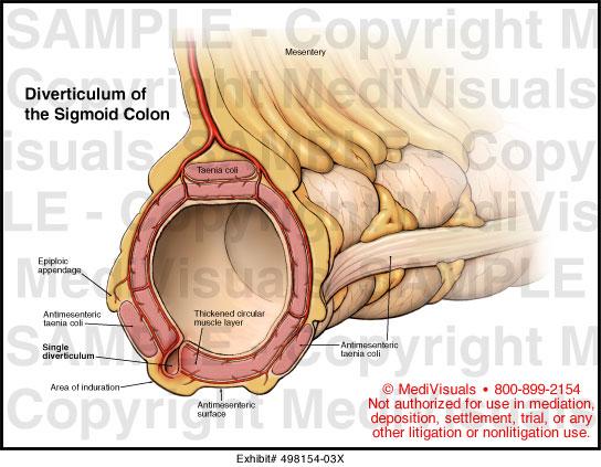 Diverticulum of the Sigmoid Colon Medical Exhibit