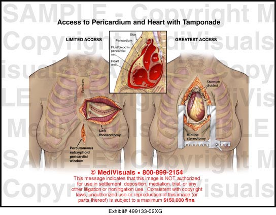 Access to Pericardium and Heart With Tamponade Medical