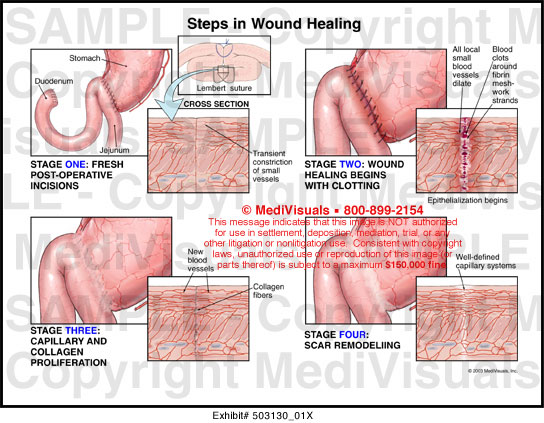 Medivisuals Steps in Wound Healing Medical Illustration