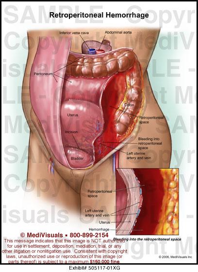 medivisuals retroperitoneal hemorrhage medical illustration