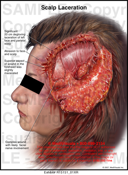 scalp laceration medivisuals medical illustration
