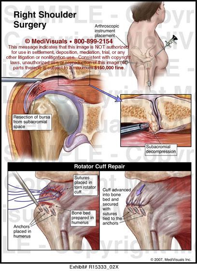 Right Shoulder Surgery Medivisuals Medical Illustration