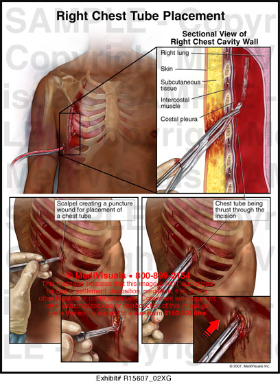 Right Chest Tube Placement - R15607_02XG