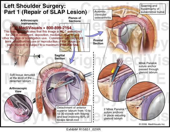 left shoulder surgery - part i - repair of slap lesion - r15651_02xr