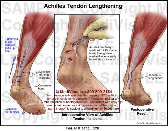 Achilles Tendon Lengthening Medical Illustration Medivisuals
