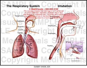 Medivisuals The Respiratory System and Intubation Medical Illustration