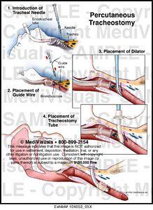 medivisuals percutaneous tracheostomy medical illustration