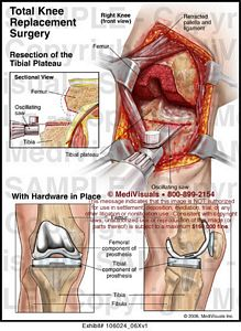 Total Knee Replacement Surgery Image