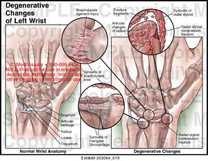 Degenerative Changes of Left Wrist Medical Exhibit Medivisuals