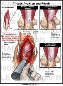 Triceps Avulsion and Repair Medical Exhibit Medivisuals