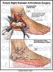 ankle fusion arthrodesis surgery